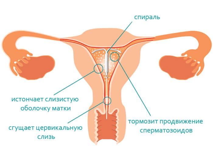 Спираль контрацептив как действует